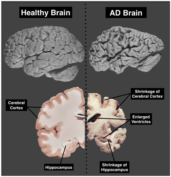 What are the symptoms of brain atrophy?