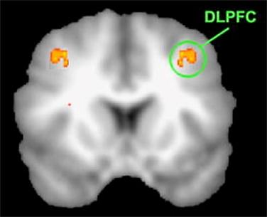 DLPFC fMRI 500