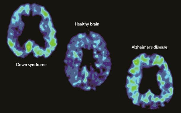 Down syndrome vs Alzheimer's disease