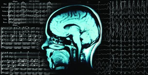 Epilepsy: The Brain's Cacophony