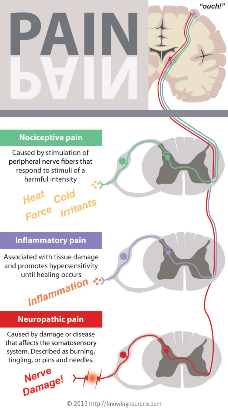 Pain Infographic Knowing Neurons Nociceptive Inflammatory Neuropathic Dorsal Root Ganglia Spinal Cord