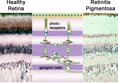 Healthy Retina vs Retinal Degneration