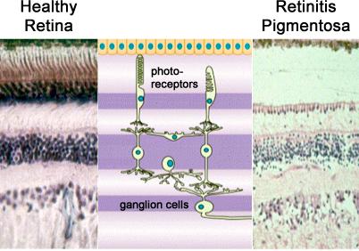Healthy Retina vs Retinal Degneration