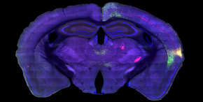 Mapping the Information Highway in theBrain