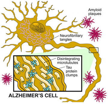 Alzheimer's Cell Amyloid Tau