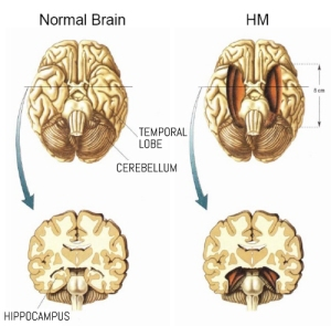 Normal vs HM brain