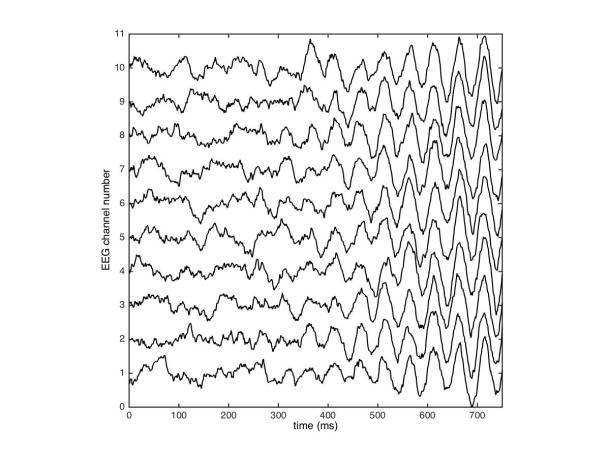 During an epileptic siezure, EEG signals undergo a loss of complexity. In the image above, simulated EEG signals become highly synchronized with simplified waveforms after the seizure onset halfway through the recording.